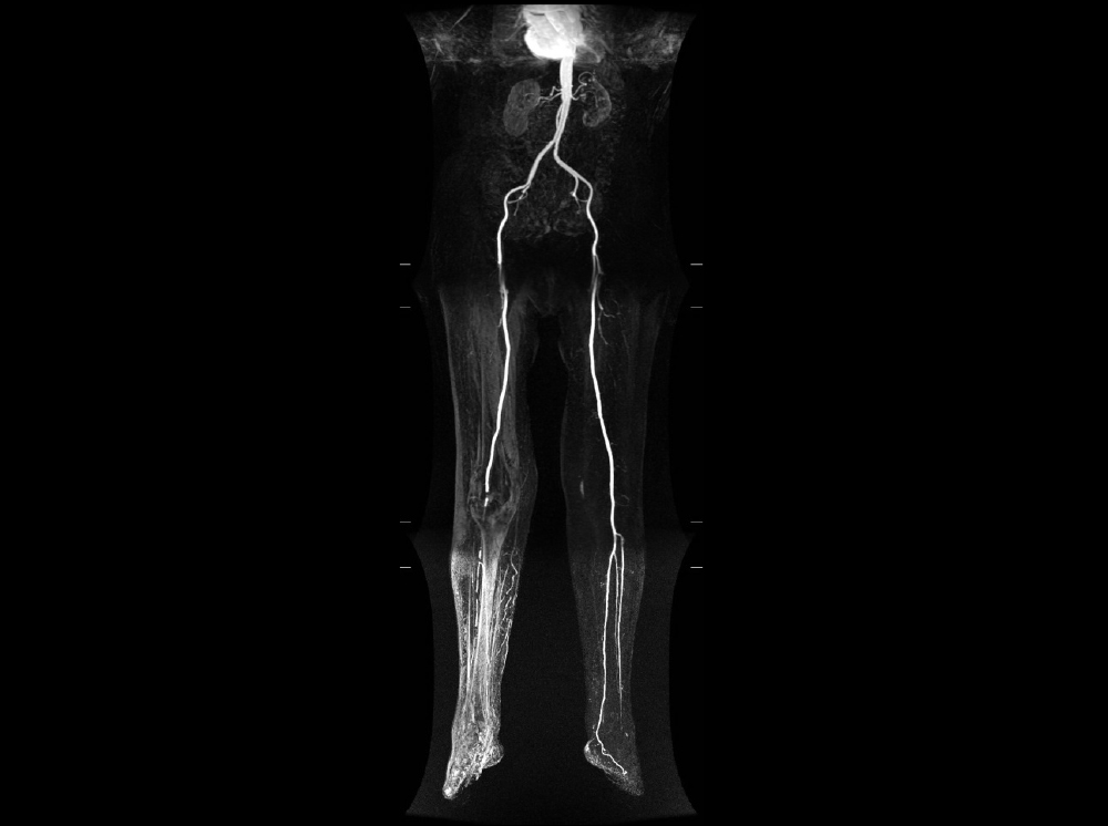 vasculars-int1