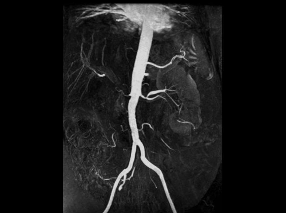 vasculars-int2