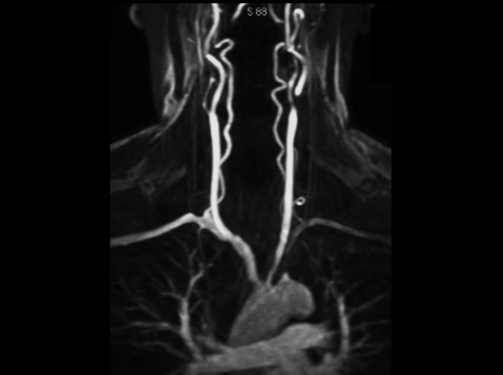 vasculars-int4